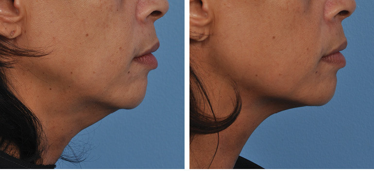 before_after_ultherapy_results_under-chi