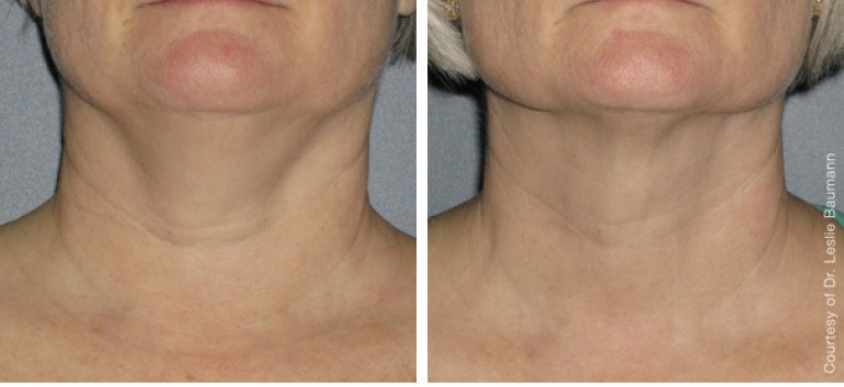 Ultherapy before and after neck