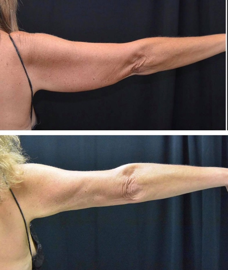 Before and After Arms CoolSculpting