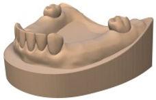 インプラント用口腔内模型