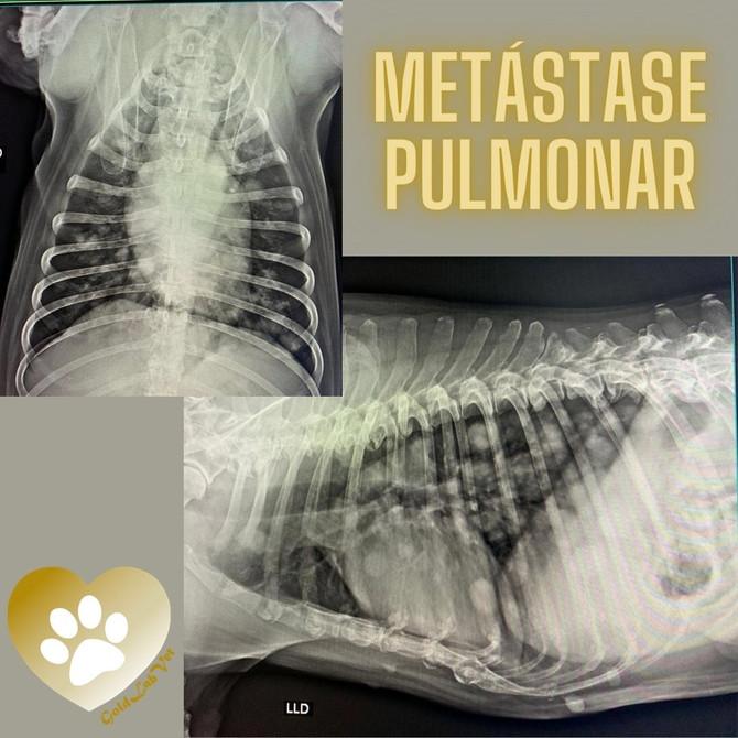 Metastáse pulmonar