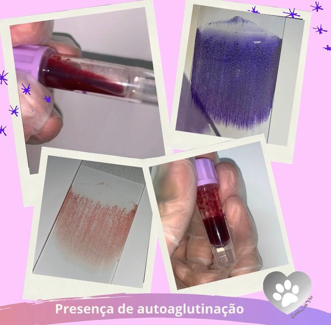 Presença de auto aglutinação em tubo de coleta sanguínea.