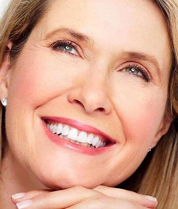Relleno con Ácido Hialurónico de Labios