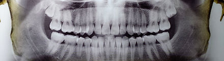 ortopanto.jpg