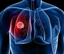 Пересадка лёгких