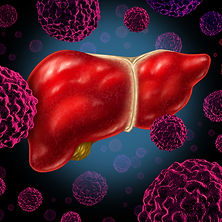 гепатит, гепатит C, лечение гепатита в Турции, интерферон альфа, лечение гепатита C инъекциями интерферона, заболевания печени, острый гепатит, хронический гепатит, осветление кала, боль в животе, тёмный цвет мочи, пересадка печени в Турции, цирроз печени, рак печени, трансплантация печени в Турции, Донор, SOVALDİ, HARVONY, RİBAVİRİN, PEGASYS,REBETOL COPEGUS