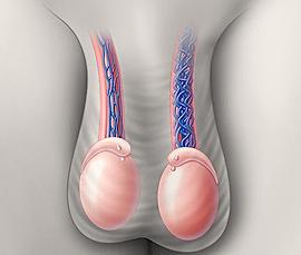 Варикоцеле, Андрология - лечение варикоцеле в Турции и за рубежом, оперирование варикоцеле в Турции, рак почки, атрофия яичка, бесплодие, мужское бесплодие, лечение мужского бесплодия в Турции, тромбоз почечных вен, боль в области яичек, реваскуляризация яичка