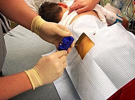 лейкемия, лейкоз, лечение рака крови в Турции, лечение лекоза в Турции, пересадка костного мозга в Турции, острый лимфобластный лейкоз, острый миелолейкоз, хронический лимфолейкоз, хронический миелолейкоз, увелечение лимфатических узлов, общий анализ крови, биопсия костного мозга