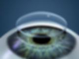 пересадка роговицы (кератопластика), замена части роговицы, восстановление функций и строения роговицы, кератоконус, дистрофия Фукса, истончение роговицы, помутнение роговицы, отторжение донорской роговицы, отёк роговицы, помутнение хрусталика (катаракта), повышение глазного давление (глаукома)