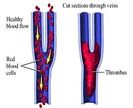 тромбоз глубоких вен, лечение в Турции, боль в ноге, отёки, боль в груди, головокружение, одышка, учащённый пульс, обморок, венография, допплер сосудов, УЗИ, гепарин, антикоагулянты, тромбоэктомия в Турции