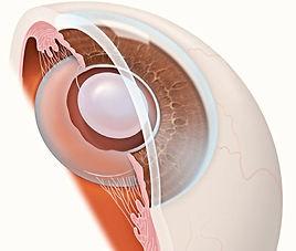 Искусственный хрусталик (интраокулярная линза - ИОЛ), Имплантация Искусственного Хрусталика в Турции, ИОЛ имплантируется в капсульную сумку хрусталика вместо хрусталика в случае его помутнения при катаракте либо для коррекции аметропии, Линзы могут быть монофокальными и мультифокальными