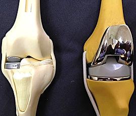 Эндопротезирование коленного сустава в Турции, замена коленного сустава за рубежом, артрит, артроз, гемофилия, некроз, подагра, дисплазия костей, перелом большеберцовой кости, остеоартрит, опухоль коленного сустава, псориаз, болезнь Бехтерева, деформация колена, гонартроз, костяные наросты, стирание хряща, отёк, боль в колене, протезирование коленного сустава, остеопения, ожирение, облитерация канала бедренной кости