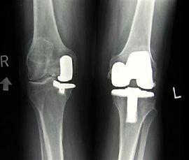 Эндопротезирование коленного сустава в Турции, замена коленного сустава за рубежом, артрит, артроз, гемофилия, некроз, подагра, дисплазия костей, перелом большеберцовой кости, остеоартрит, опухоль коленного сустава, псориаз, болезнь Бехтерева, деформация колена, гонартроз, костяные наросты, стирание хряща, отёк, боль в колене, протезирование коленного сустава, искусственный сустав, эндопротез, press-fit