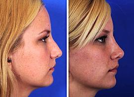 ринопластика в Турции, хирургия носа, искривление носовой перегородки, деформация носа, нарушение дыхания, горбинка, травмы носа, лечение в Турции, реконструктивная хирургия, эстетическая хирургия, пластическая хирургия, хрящ носа, филлеры, нити Atos