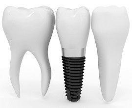 Стоматология в Турции, здоровье дёсен, кариес, имплантация зубов в Турции, эрозия эмали, синуслифтинг в Турции, стоматит, глоссит, стоматологическая хирургия