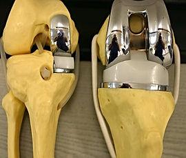 Эндопротезирование коленного сустава в Турции, замена коленного сустава за рубежом, артрит, артроз, гемофилия, некроз, подагра, дисплазия костей, перелом большеберцовой кости, остеоартрит, опухоль коленного сустава, псориаз, болезнь Бехтерева, деформация колена, гонартроз, костяные наросты, стирание хряща, отёк, боль в колене, протезирование коленного сустава