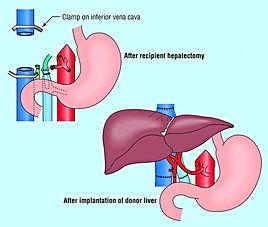 пересадка органов в Турции, пересадка печени, пересадка от живого донара, трансплантология в Турции, цирроз печени, печёночная недостаточность, гепатит В,С,D, патологии печени, поликистоз печени