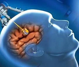 рак головного мозга, опухоли головного мозга, нейрохирургия в Турции, лечение рака головного мозга в Турции, глиома, менингиома, невринома, эпендиома, олигодендроглиома, головная боль и рак мозга, нарушение равновесия, судороги, головокружение, операции на головной мозг, радиотерапия и рак мозга