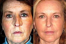 ритидэктомия, подтяжка лица в Турции, пластическая хирургия в Турции, эстетическая хирургия, морщины, подтяжка шеи, травма лицевого нерва, шрамы, рубцы, подтяжка кожи,