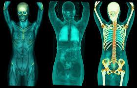 Революционная технология в диагностике рака ПЭТ-МРТ