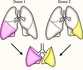 пересадка органов в Турции, пересадка лёгких, пересадка от живого донара, трансплантология в Турции, фиброз лёгких, бронхоэтказы, эмфизема лёгких, лёгочная гипертензия, саркоидоз лёгких