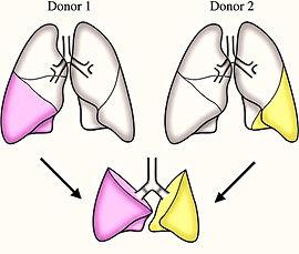 рак лёгких, лечение рака лёгких в Турции, причины рака лёгких, симптомы рака лёгких, хирургическое лечение рака лёгких, паллиативная хирургия, удаление лёгкого, пересадка лёгких в Турции, химиотерапия при раке лёгких