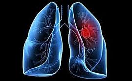 рак лёгких, лечение рака лёгких в Турции, причины рака лёгких, симптомы рака лёгких
