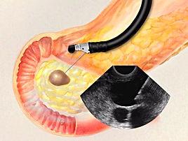 рак поджелужочной железы, лечение онкологических заболеваний в Турции, злокачественная опухоль поджелудочной железы, эндоскопическое УЗИ, EUS, эндоскопическая ретроградная холангиопанкреатография, ERCP, биопсия поджелудочной железы