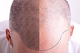 пересадка волос в Турции, облысение мужчин, облысение женщин, метод FUE, экстракция фолликулярных объединений