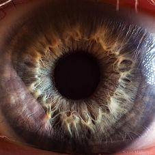 Операции в Турции, LASIK, LASEK, ILASEK, EPI-LASIK, INTRALASE LASIK,PRK, рефракционные хирургические вмещательства, Близорукость (миопия), Дальнозоркость (гиперметропия), Астигматизм, Возвращение зрения, Потеря зрения или изменение зрения, Сухость глаз, Кератоконус, кератит, увеит,герпес, глаукома, катаракта, травмы глаз или дефекты век, пресбиопия, LASIK выполняется на обоих глазах в один и тот же день