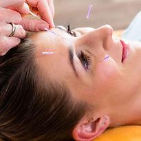 acupunture2-400x400.jpg
