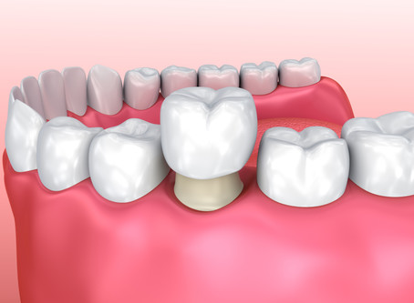 How a Dental Crown Restores a Tooth, From Your McKinney Family & General Dentist