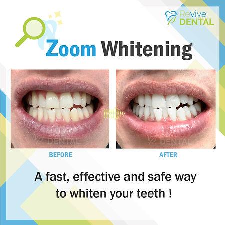 Revive Dental_Whitening_CaseStudy_031119