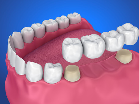 Patients in Seattle, Washington Ask: What is a Dental Bridge, and is it a Good Option For Me?