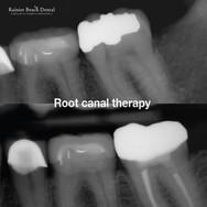 Rainier Beach Dental_Root canal therapy(
