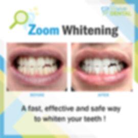 Revive Dental_Whitening_CaseStudy_031119