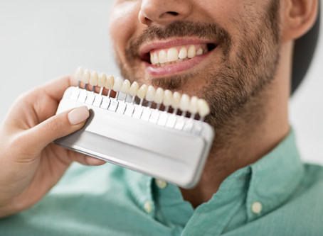 Your Seattle Cosmetic Dentist Explains Dental Veneers