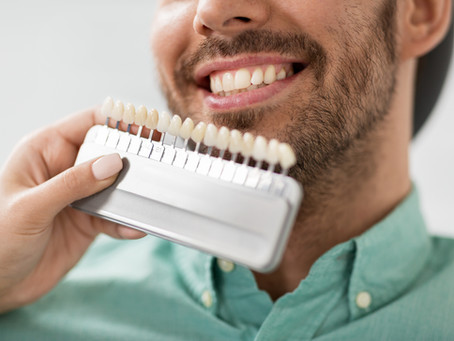 Your Cosmetic and General Dentist in Seattle, Washington Explains Dental Veneers