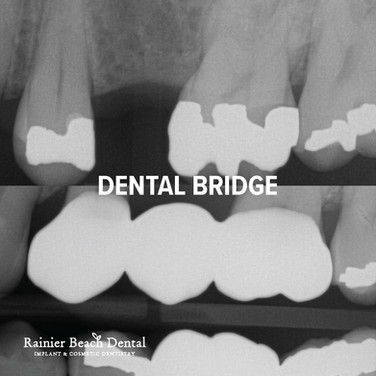 Rainier Beach Dental_Dental Bridge_4.jpg