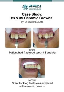 Ceramic Crowns (#8, #9)