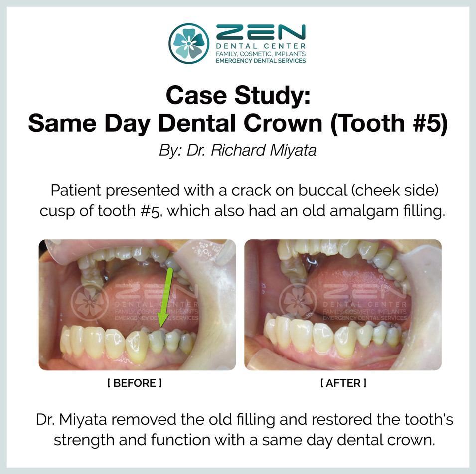 Same Day Dental Crown (Tooth #5)