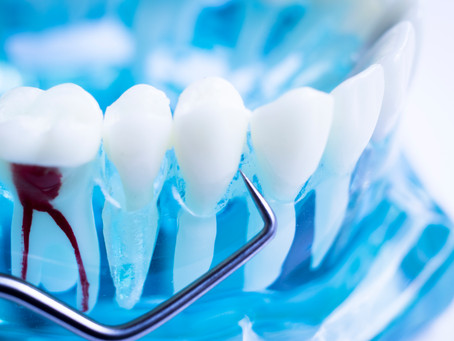 How To Tell When You Need A Root Canal, Explained By Your General Dentist in Portland, Oregon