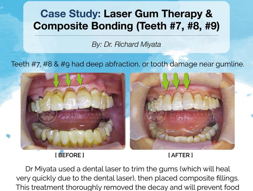 Case Study: Laser Gum Therapy & Composite Bonding (Teeth 7,8,9)