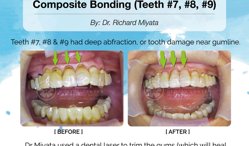 Case Study: Laser Gum Therapy & Composite Bonding (Teeth 7,8,9)