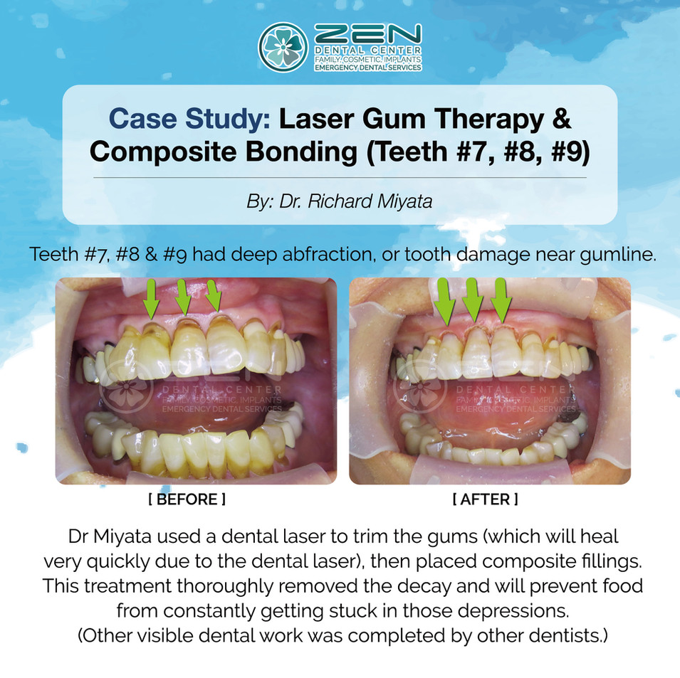 Laser Gum Therapy & Composite Bonding (Teeth #7, 8, 9)