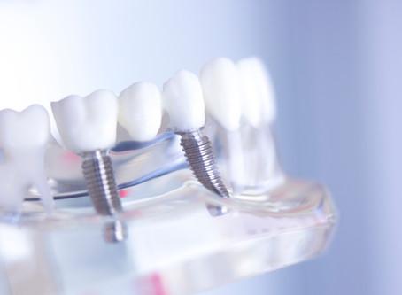 What are the Benefits of Dental Implants? McKinney Dentist Explains - CK Dental City