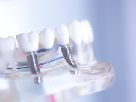 What are the Benefits of Dental Implants? Your General & Family Dentist in McKinney, Texas Explains