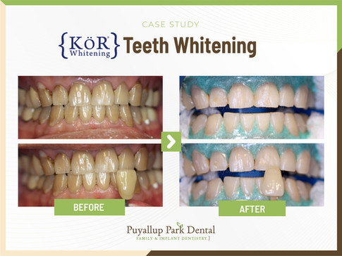 KOR Teeth Whitening