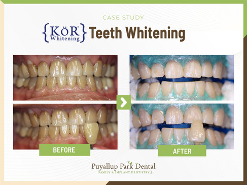 KOR Teeth Whitening