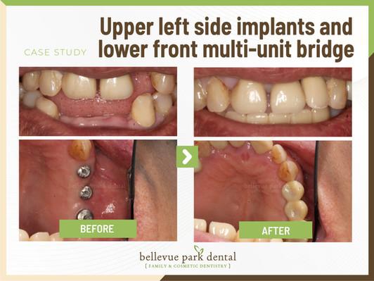 Upper Left Side Implant And Lower Front Multi-Unit Bridge